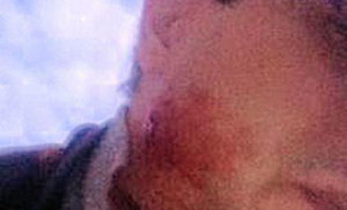 VOGHERA 27/02/2015: Per vendetta i ladri lo colpiscono al volto con una biglia. Aveva appena sventato un furto dai vicini. 39enne al pronto soccorso
