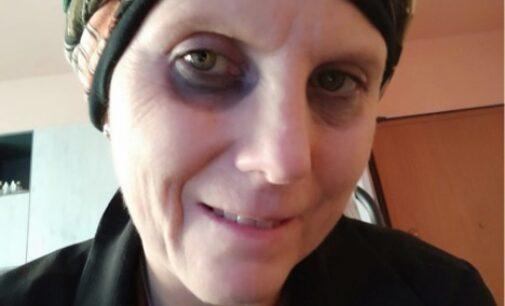 VOGHERA PAVIA OLTREPO 15/02/2021: Donna nata a Como cerca la madre naturale per salvarsi da un tumore
